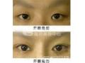 如何避免开眼角术后疤痕增生的情况?