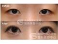 为什么双眼皮要和开眼角手术一起做?