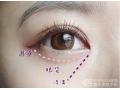 如何区分眼袋,卧蚕,泪沟?荆州割眼袋多少钱?