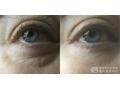 荆州割眼袋选择那种方式好?激光祛眼袋还是手术切除眼袋?
