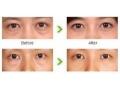 手术割眼袋真的可以一劳永逸吗?手术祛眼袋效果是永久的吗?