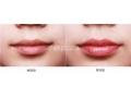 玻尿酸丰唇效果能维持几个月?