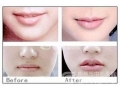 唇部注射选择哪个牌子的玻尿酸好?