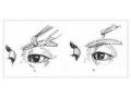做切眉手术选择那种手术方式术后恢复效果最好?