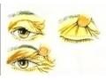 提眉手术术后会留疤吗?