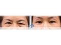 荆州做提眉手术术后伤口明显吗?