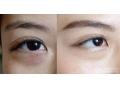 荆州做手术割眼袋选择内切还是外切?