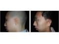 荆州医院做耳畸形矫正手术挂什么科?