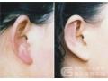 荆州医院做耳畸形矫正手术选择哪家医院?