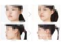 荆州做下颌整形手术选择注射玻尿酸还是假体植入?