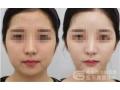 荆州做面部线雕用的什么线?能维持几年?