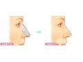 荆州做驼峰鼻矫正手术术后会留疤吗