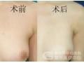 副乳切除手术和腋臭手术可以一起做吗?