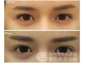 玻尿酸注射丰卧蚕会不会对眼睛造成影响?