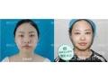 全切双眼皮太宽了消肿后会变窄吗?需要做修复手术吗?