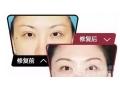 荆州医院整形科医生为您讲解做双眼皮修复手术的*佳时期