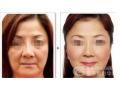 荆州医院做面部线雕术后有副作用吗?
