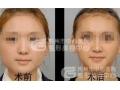 国产瘦脸针比进口瘦脸针便宜那么多,副作用大吗?