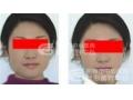 注射国产瘦脸针术后会引起面部表情僵硬吗?