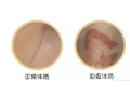 激光祛疤真的有效果吗?