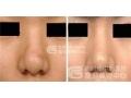 沙市做鼻头缩小手术费用贵吗?