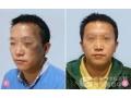 荆州做激光治疗面部胎记选择哪家医院好?