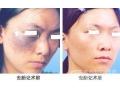 激光祛胎记效果好吗?对 面部皮肤损伤大吗?